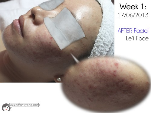 sylvia skin atelier facial