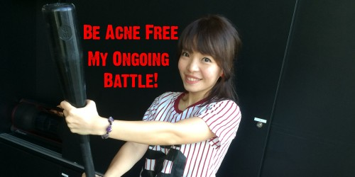 Be Acne Free Part 8